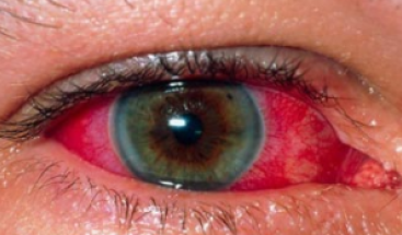 bloodshot-eyes-png-also-smoking-weed-causes-the-blood-vessels-inside-eyes-to-dilate-the-increased-flow-of-blood-in-the-eyes-is-what-causes-your-eyes-to-appear-red-367